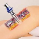 Метод ударно волновой терапии