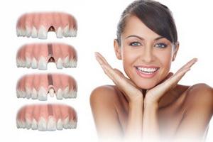 Имплантация зубов. Какие могут быть противопоказания?